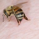 Bee and Wasp Stings > Symptoms, Treatment, Home remedies, When to call a doctor, Prevention