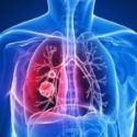 Bronchitis > Symptoms, Treatments, Causes, Diagnosis, Complications, When to see a doctor