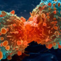 Cancer > What is cancer? Causes, Treatments, Types